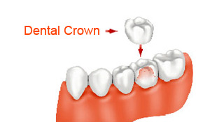 dental-crowns-problems