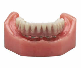 Fixed Detachable (RP-4) Teeth Anchored Exclusively By Implants