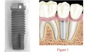 Root type dental implants in dallas