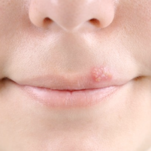 cold sore treatment