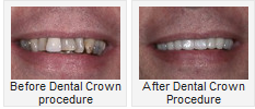 Before and After Dental Crown Procedure