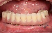 After Implant Retained Hybrid Denture