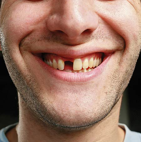 Not replacing a missing tooth can cost much more in the long run