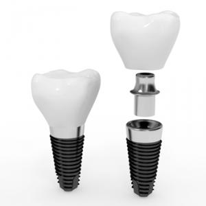 crowns on dental implants