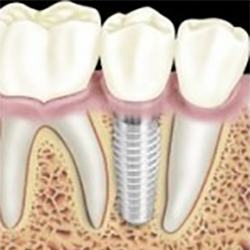 In House Financing Dallas Tx >> Mini Dental Implants | Root Form Tooth Implants | Dallas ...