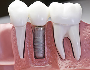 proper care of your dental implants